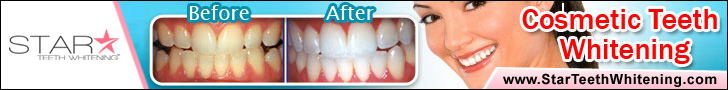 Star Teeth Whitening Results