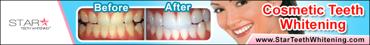 35% Popular Pro Home Whitening Treatment