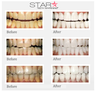 22% Star Teeth Whitening Gel