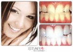 35% Star Teeth Whitening Gel