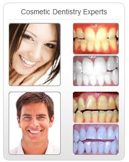Star Teeth Whitening Results